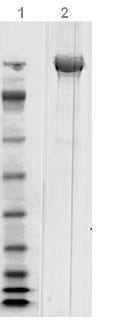 SDS-PAGE - Clostridium difficile Toxoid B protein (ab124002)