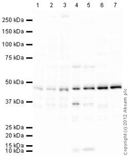 Western blot - Anti-Ceramide glucosyltransferase antibody (ab124296)