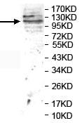 Western blot - Anti-BMPR2 antibody (ab124463)