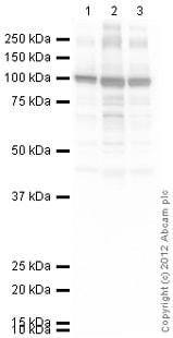 Western blot - Anti-SERCA1 ATPase antibody (ab124501)