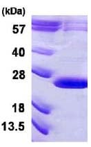 SDS-PAGE - VPS29 protein (His tag) (ab124582)