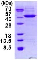 SDS-PAGE - HIBCH protein (His tag) (ab124585)