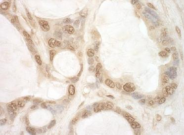 Immunohistochemistry (Formalin/PFA-fixed paraffin-embedded sections) - Anti-eIF2B epsilon antibody (ab124655)
