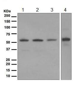 Western blot - Anti-Glucose 6 Phosphate Dehydrogenase antibody [EPR6291] (ab124738)