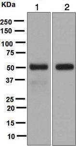 Western blot - Anti-LIPF antibody [EPR5711(B)] (ab124831)