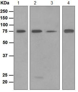 Western blot - Anti-Dyrk1B antibody [EPR5617] (ab124960)