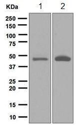 Western blot - Anti-BHMT antibody [EPR6782] (ab124992)