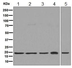 Western blot - Anti-HMGN2 antibody [EPR7091] (ab124997)