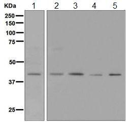 Western blot - Anti-Neurokinin A Receptor antibody [EPR6838(B)] (ab124998)