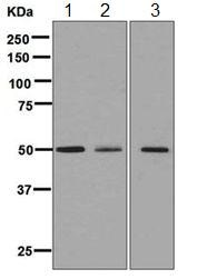 Western blot - Anti-ATTY antibody [EPR6121] (ab125000)