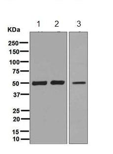 Western blot - Anti-CSK antibody [EPR6771] (ab125005)