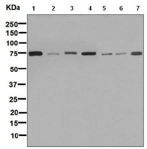 Western blot - Anti-GARS antibody [EPR7157] (ab125008)