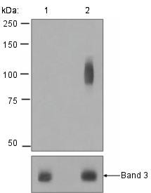 Western blot - Anti-Band 3 (phospho Y21) antibody [EPR1424] (ab125070)