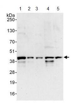 Western blot - Anti-FYTTD1 antibody (ab125082)