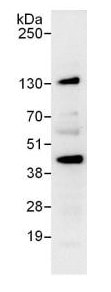 Immunoprecipitation - Anti-FYTTD1 antibody (ab125082)