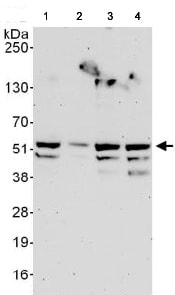 Western blot - Anti-RING1 antibody (ab125193)