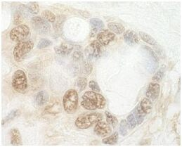 Immunohistochemistry (Formalin/PFA-fixed paraffin-embedded sections) - Anti-CNOT2 antibody (ab125194)