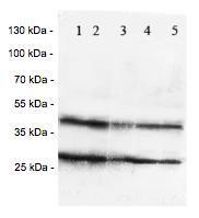 Western blot - Anti-Chemokine Receptor D6 antibody (ab125224)