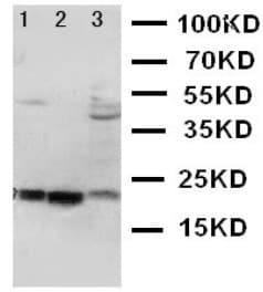Western blot - Anti-Angiogenin antibody (ab125231)