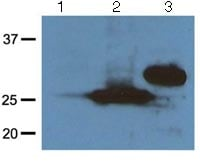 Western blot - Anti-RFP antibody [RF5R] (ab125244)