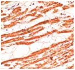Immunohistochemistry (Formalin/PFA-fixed paraffin-embedded sections) - Anti-Cardiac Troponin T antibody (ab125266)