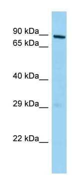 Western blot - Anti-MPHOSPH10 antibody (ab125338)