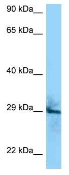 Western blot - Anti-CD151 antibody (ab125363)