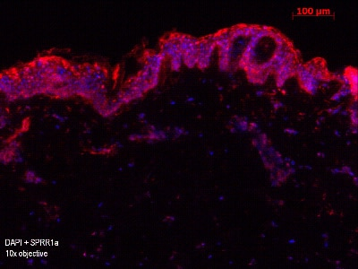 Immunohistochemistry (Frozen sections) - Anti-SPRR1a antibody (ab125374)