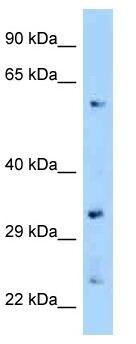 Western blot - Anti-ZNF664 antibody (ab125391)