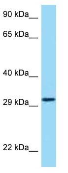 Western blot - Anti-HRH4 antibody (ab125393)
