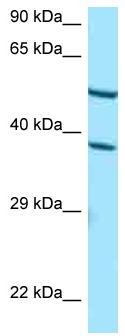 Western blot - Anti-CYP4F2 antibody (ab125399)