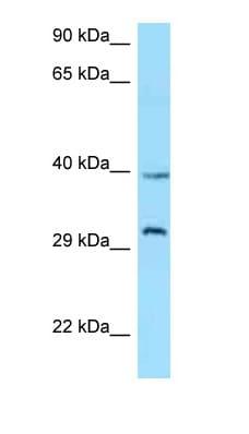 Western blot - Anti-Ghrelin Receptor antibody (ab125457)