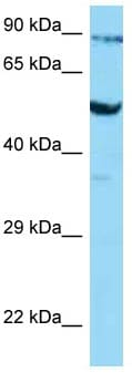 Western blot - Anti-Glucose Transporter GLUT3 antibody (ab125465)