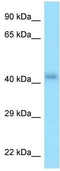 Western blot - Anti-P2Y2 antibody (ab125474)