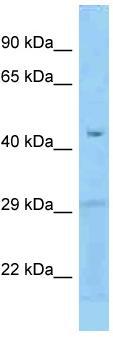 Western blot - Anti-FCRLB  antibody (ab125526)
