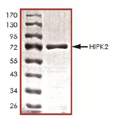 SDS-PAGE - HIPK2 protein (Active) (ab125553)