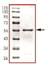 SDS-PAGE - PHLPP2 protein (Tagged) (ab125556)