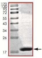 SDS-PAGE - Stathmin 1 protein (His tag) (ab125559)