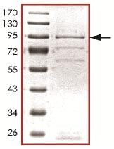SDS-PAGE - LATS1 protein (Active) (ab125612)