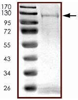 SDS-PAGE - NEK9 protein (Active) (ab125614)