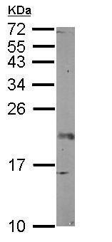 Western blot - Anti-FGF12 antibody (ab125682)