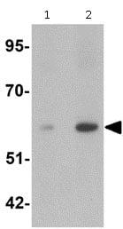Western blot - Anti-Angiopoietin 2 antibody (ab125692)