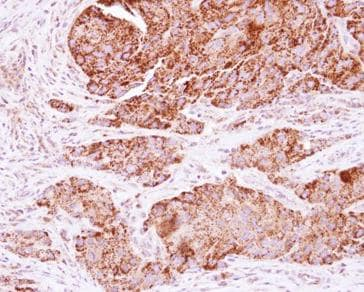 Immunohistochemistry (Formalin/PFA-fixed paraffin-embedded sections) - Anti-C21orf33 antibody (ab125694)