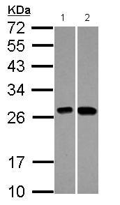 Western blot - Anti-C21orf33 antibody (ab125694)