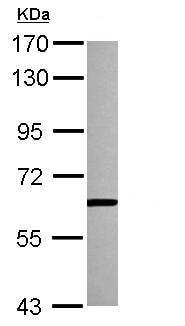 Western blot - Anti-PKLR antibody (ab125697)