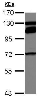 Western blot - Anti-MTHFR antibody (ab125707)
