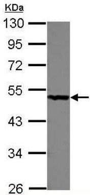Western blot - Anti-PGD antibody (ab125863)