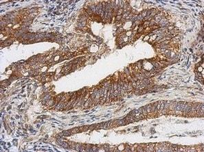 Immunohistochemistry (Formalin/PFA-fixed paraffin-embedded sections) - Anti-TSFM antibody (ab125872)