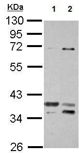Western blot - Anti-TSFM antibody (ab125872)