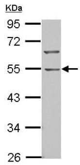 Western blot - Anti-BTBD10 antibody (ab126060)